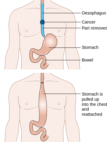 Diagram_showing_before_and_after_a_total_oesophagectomy_CRUK_105