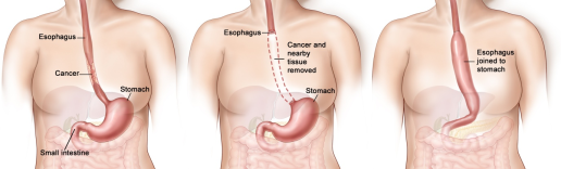 Esophagectomy-Cancer-of-the-Oesophagus